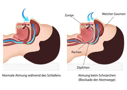 Atmung während des Schnarchens